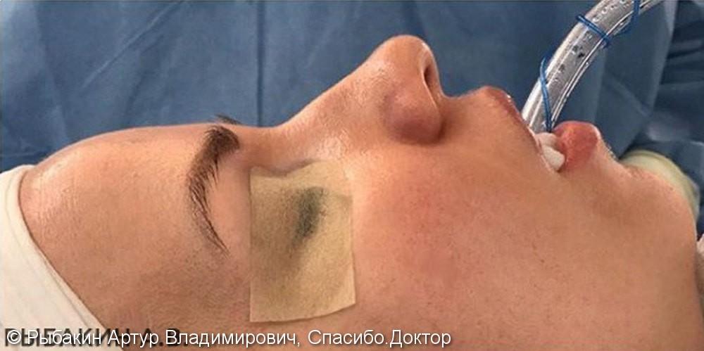 Закрытая ринопластика, фото до и после сразу после операции - фото №1