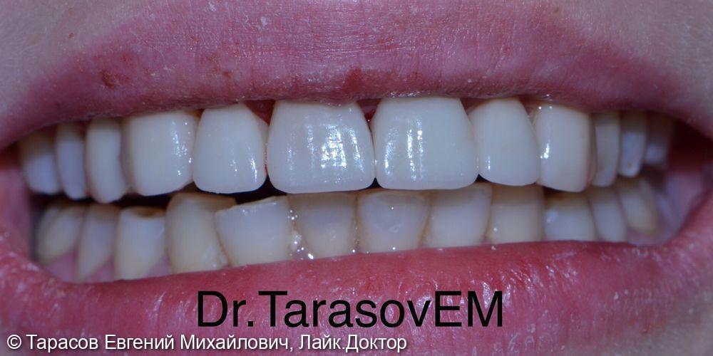 Изготовление керамических реставраций на верхний зубной ряд - фото №2