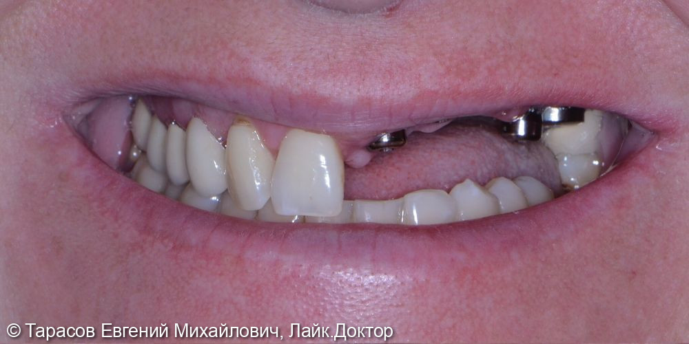 Протезирование металлокерамическими коронками с опорой на имплантаты - фото №1