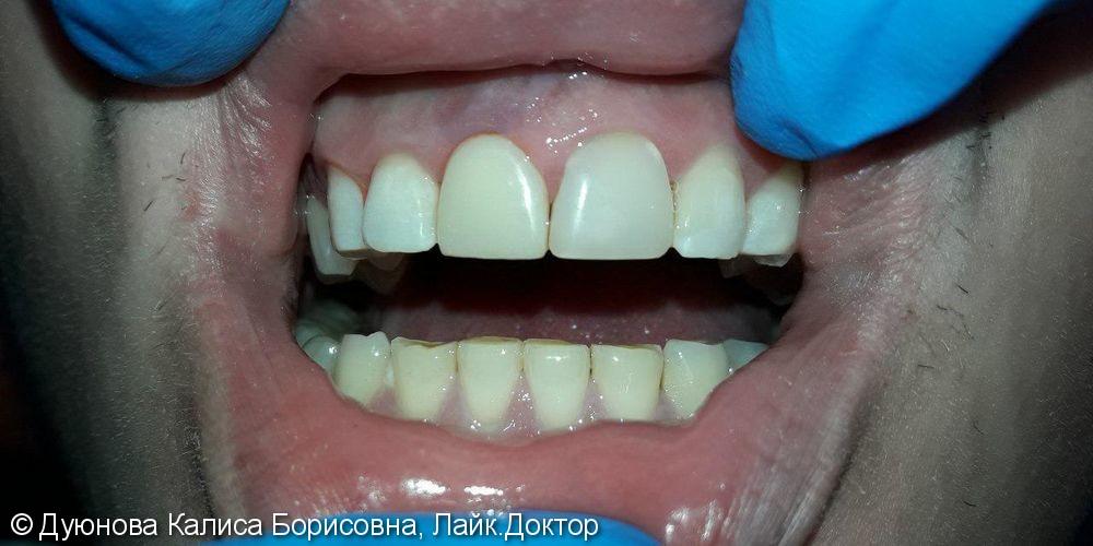 Художественная реставрация фронтальной поверхности зуба композитным материалом Estet X - фото №2