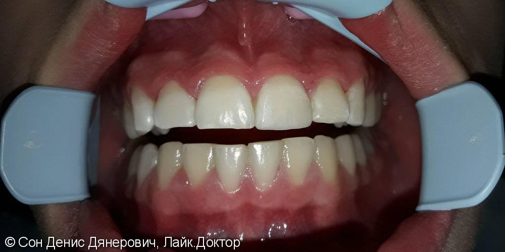 Эстетическая реставрация фронтального зуба светоотверждаемым материалом Filtek (США) - фото №3