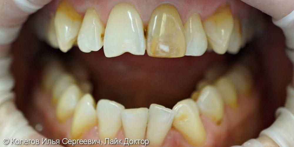 Дисколорит центральных зубов и неудовлетворительную эстетику - фото №1