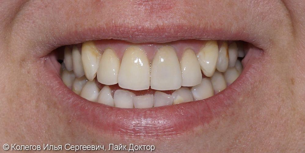 Дисколорит центральных зубов и неудовлетворительную эстетику - фото №2