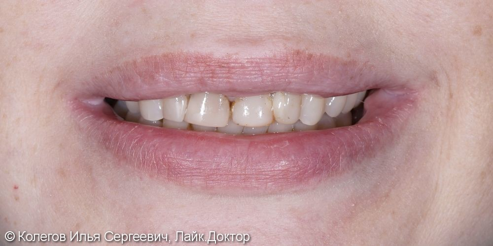 Изменены цвет и форма зубов, поднята высота прикуса - фото №1