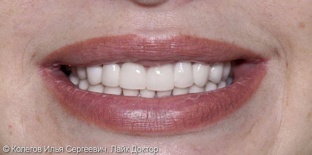 Изменены цвет и форма зубов, поднята высота прикуса - фото №4