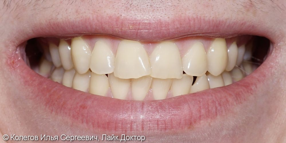 Исправлена легкая кривизна зубов керамическими винирами E.Max - фото №1
