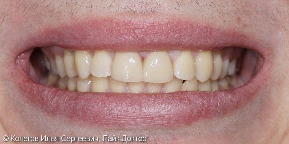 Исправлена легкая кривизна зубов керамическими винирами E.Max - фото №4
