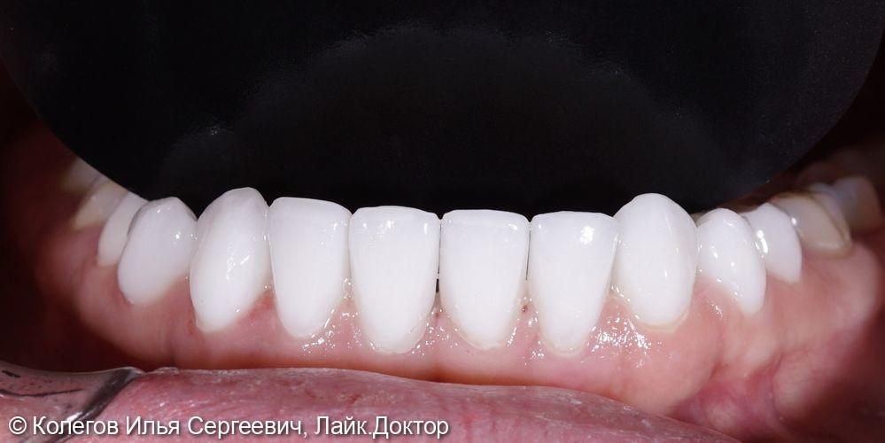 Установка керамических виниров на нижние зубы - фото №2