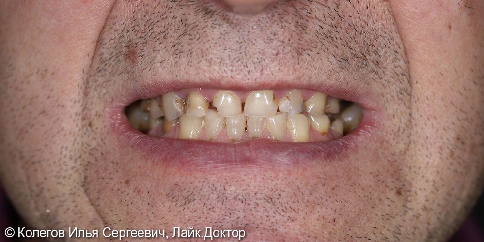 Реставрация зубов - фото №1