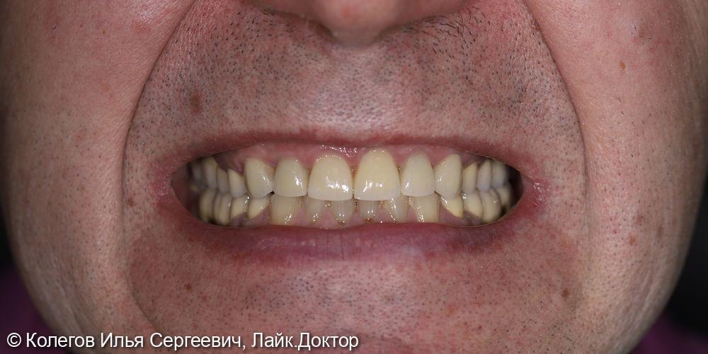Реставрация зубов - фото №4