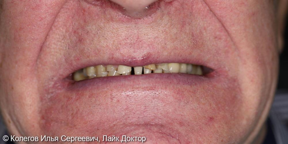 Реабилитация улыбки проходила в несколько этапов - фото №1