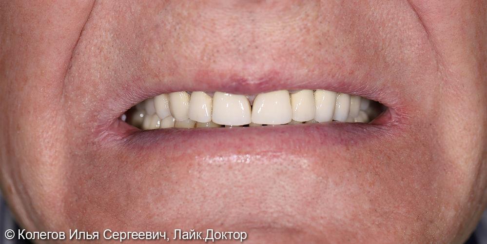 Реабилитация улыбки проходила в несколько этапов - фото №7